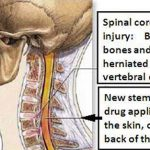 Spinal Cord Injury Treated Successfully Using New Drug